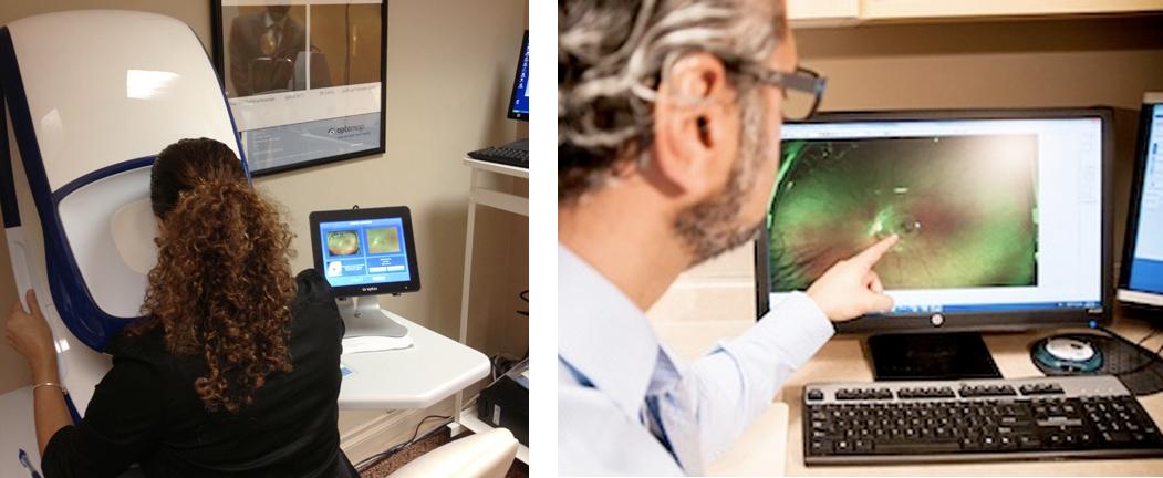 Daytona Optomap Retinal Scan